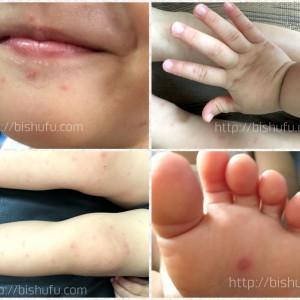 手足口病(子供の症状画像)