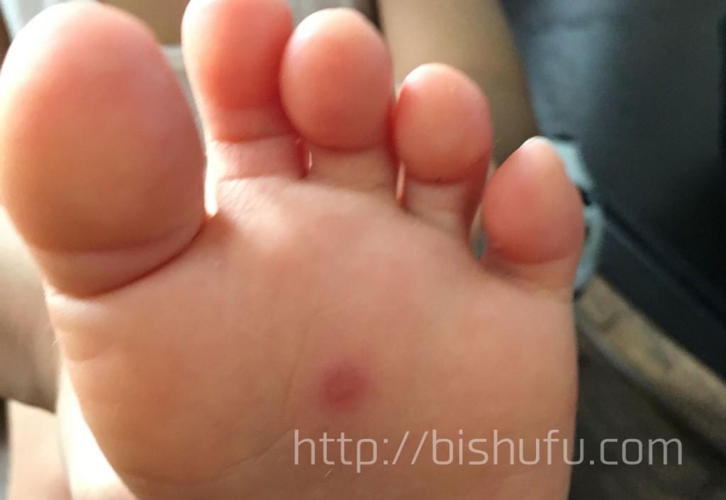 手足口病数日後(足の裏の症状画像)